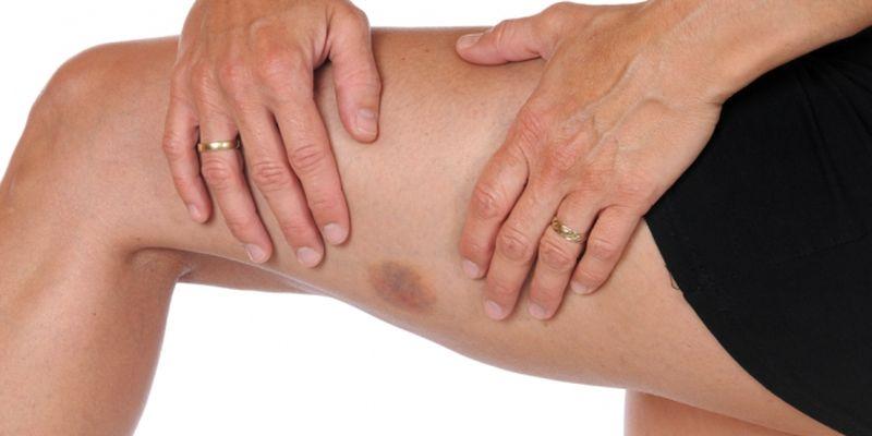 Синяки на теле без причины – это очень тревожный сигнал организма