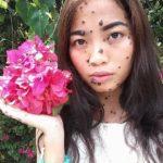Модель с дефектами кожи оказалась в шаге от Мисс Вселенная
