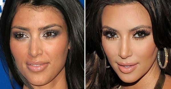 Как подкорректировать свою внешность без пластических операций