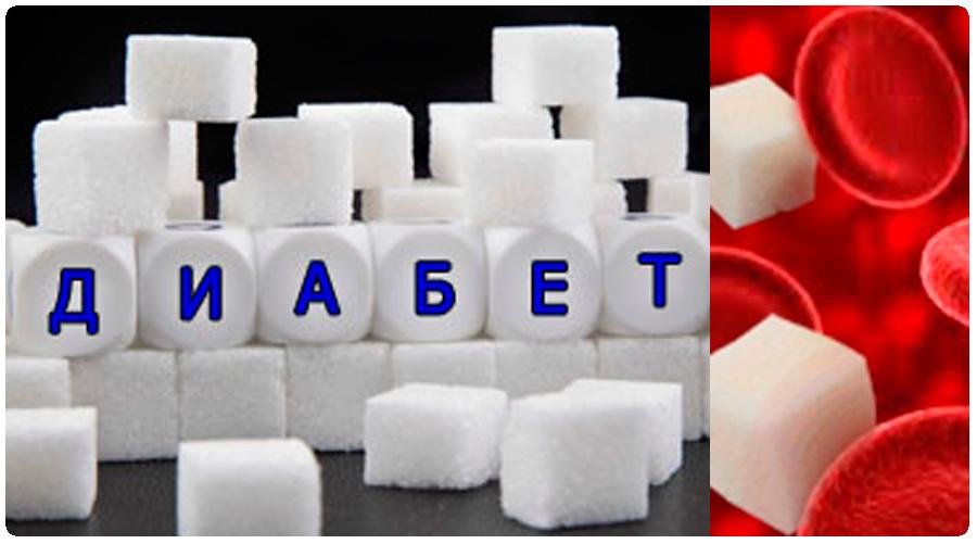 Что нужно знать о «несладкой» болезни – диабете