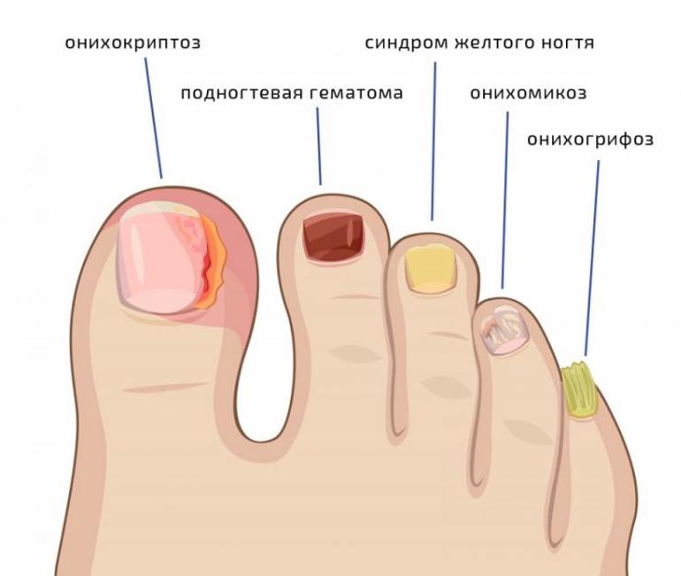 От чего может возникнуть грибок ногтей?