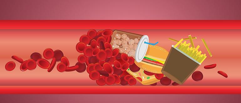 Как за один месяц понизить уровень холестерина вдвое