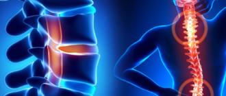 Как вылечить остеохондроз в домашних условиях