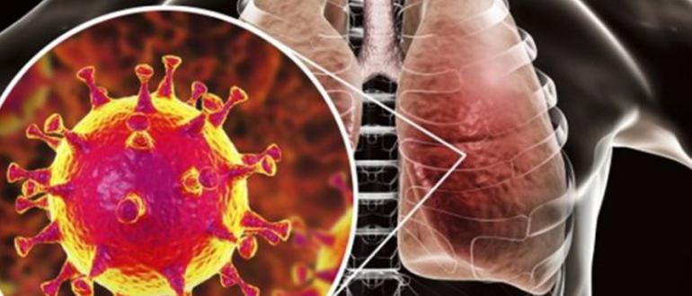 Симптомы нового коронавируса
