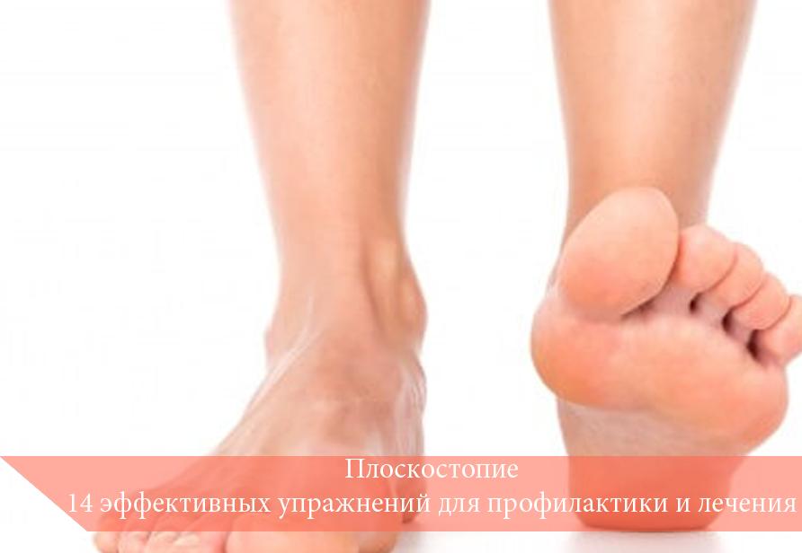 Плоскостопие: 14 эффективных упражнений для профилактики и лечения