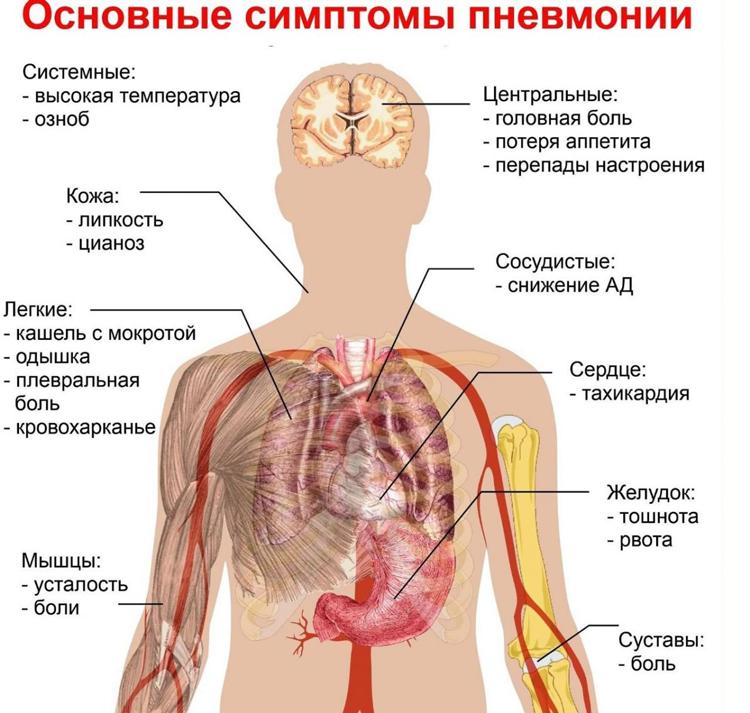 основные-симптомы-пневмонии