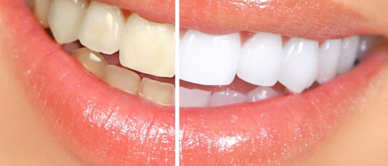 Пятна на зубах: как сохранить белоснежную улыбку