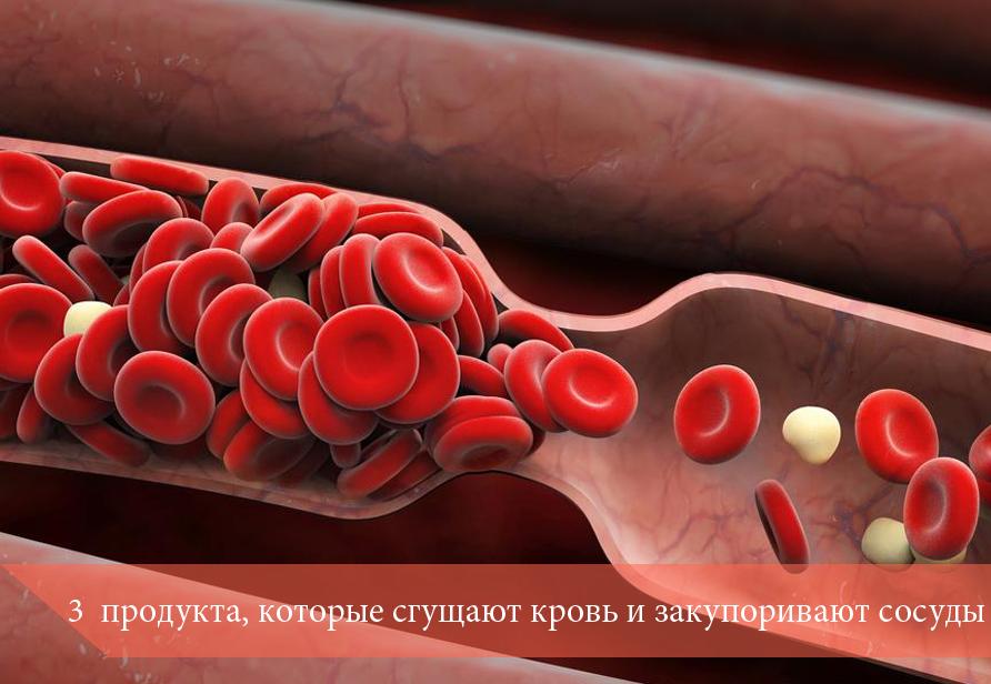 3 продукта, которые сгущают кровь и закупоривают сосуды