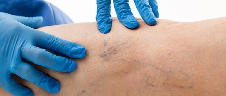 Варикозное расширение вен: причины, симптомы, лечение и профилактика