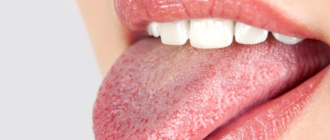 Жёлтый язык – опасен ли налёт, и как от него избавиться