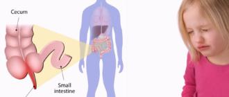 Острый аппендицит у детей, симптомы