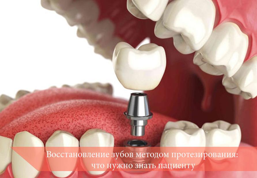 Восстановление зубов методом протезирования: что нужно знать пациенту