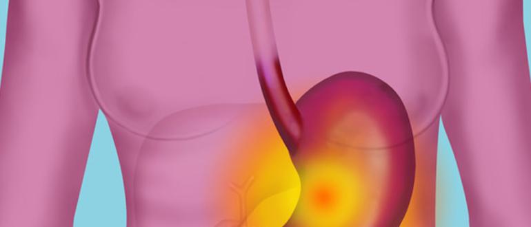 Как узнать уровень кислотности в желудке в домашних условиях