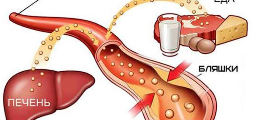 Продукты, от которых растут бляшки в сосудах, и повышается холестерин