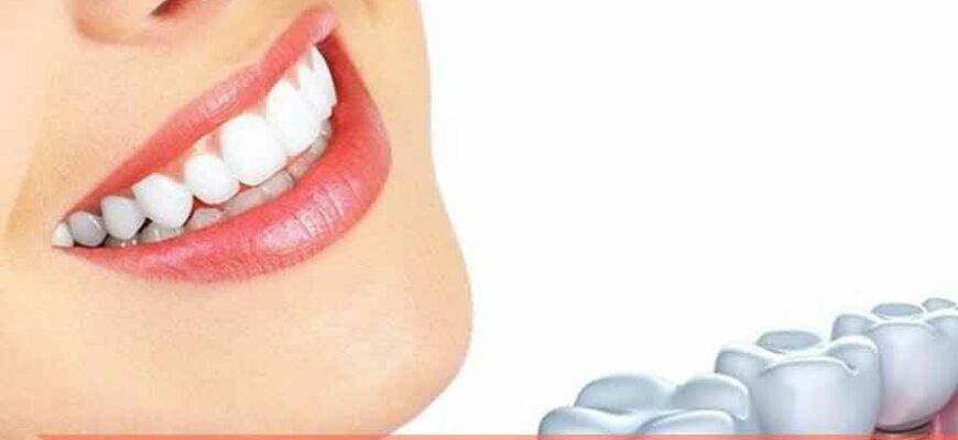 Чего нельзя делать, если во рту стоят импланты?